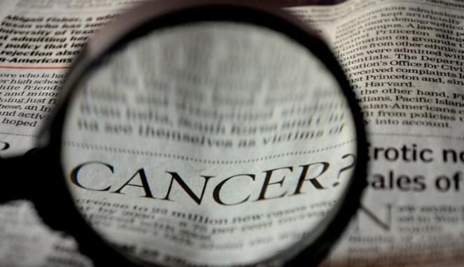 Kenali Tanda Awal Kanker Tiroid